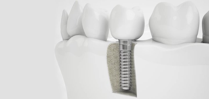 Скидка 44% на установку зубных имплантов в Университетской клинике КИМУ