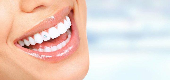 Скидка до 60% на скайсы с установкой, чисткой и отбеливанием зубов в студии «Smile to you»